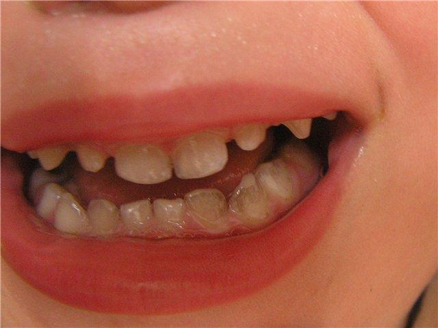 Внешне картина походила на зубной камень, но при внимательном осмотре (позже у стоматолога) выяснилось, что попросту отсутствует зубная эмаль и ощущается впадина.