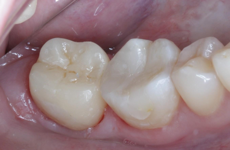 Мышьяковистая паста в стоматологии - 32Дента