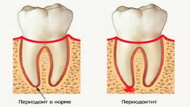 Вашему дантисту придется бороться за сохранение здорового зуба и уменьшения риска сепсиса.